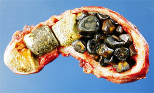 The Facts on Gallstones